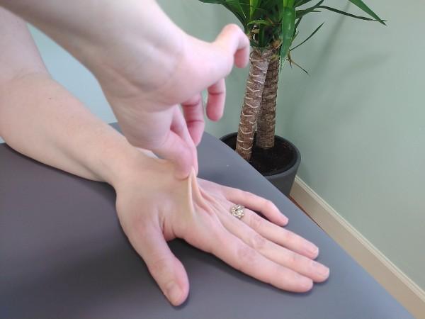 Hypermobility - Skin
