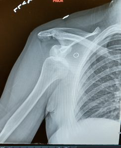 My dislocated shoulder
